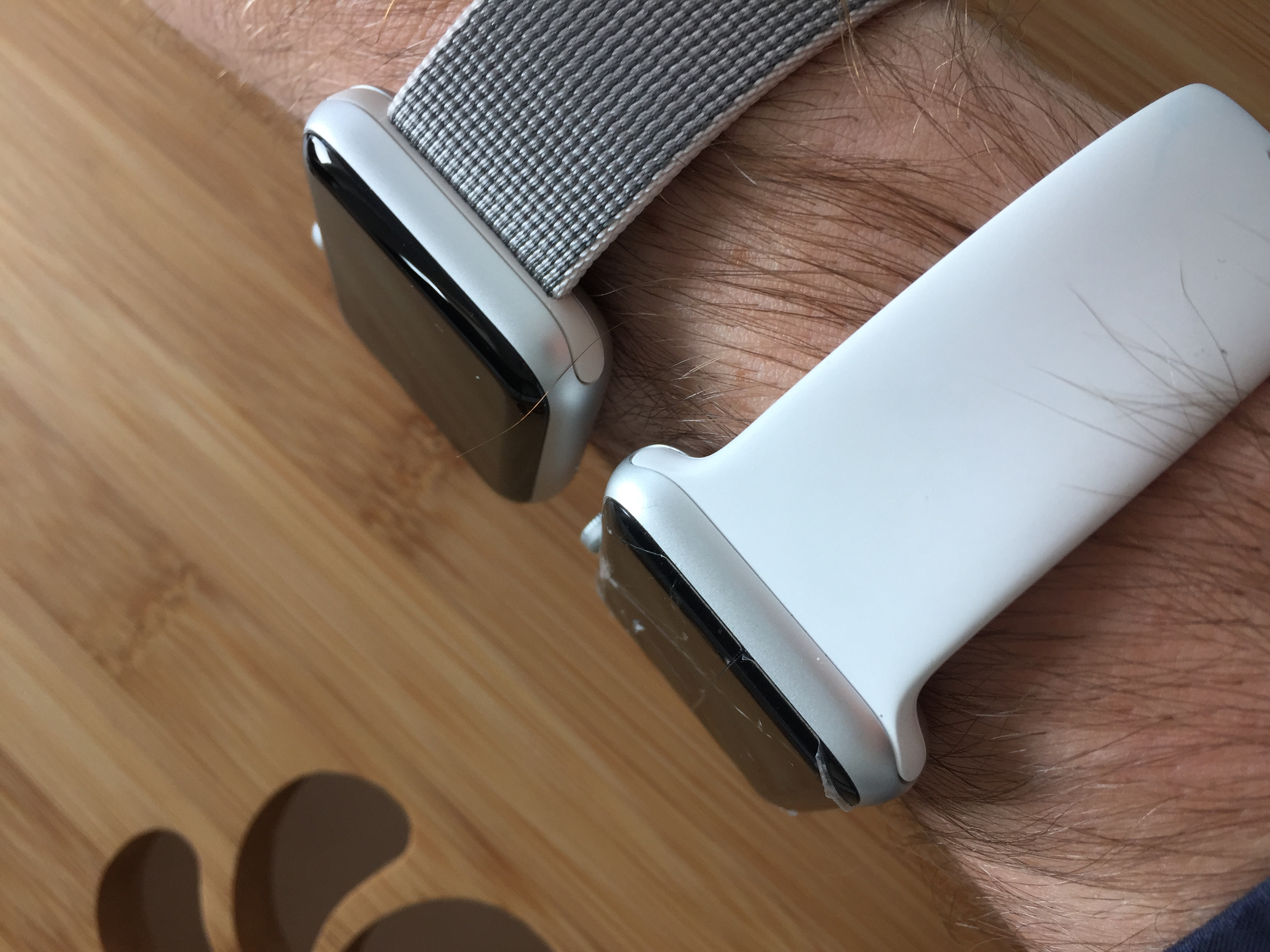 two watches same arm